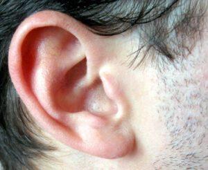 הצמדת אוזניים